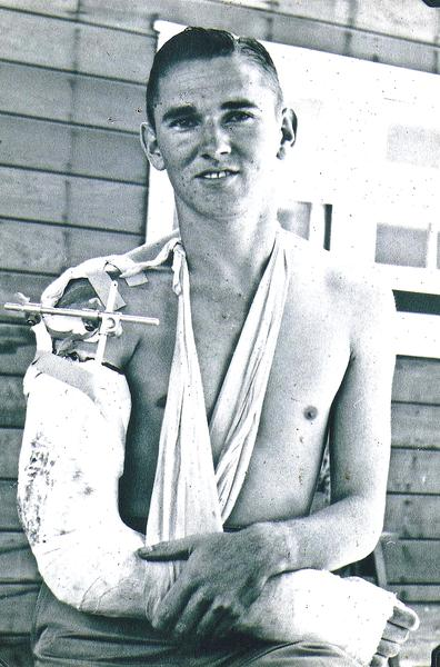 Joe Griffin displays his wounded arm for a cameraman at a rear-echelon hospital.